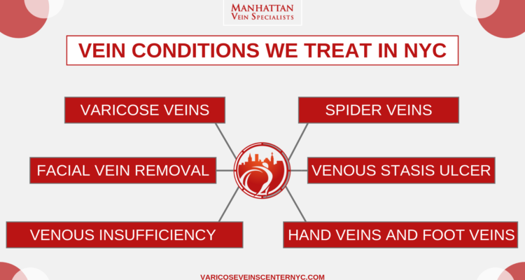 Varicose Vein Treatments Center Upper East Side