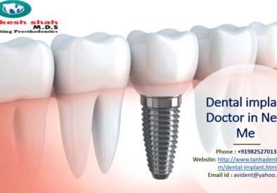 Dental implant Docto...